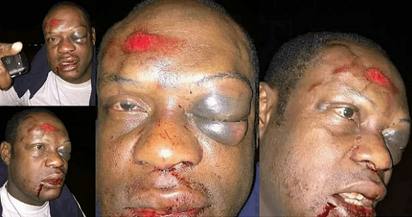 Nigerian Guy Was Beaten Mercilessly For Allegedly Having Sex With Another Man's Wife